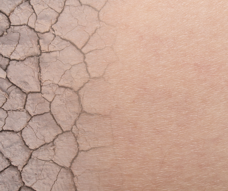 Bardzo przesuszona skóra www.wyspa-kobiet.pl