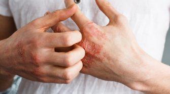 Atopowe zapalenie skóry - kobieta drapiąca się po suchych, popękanych dłoniach